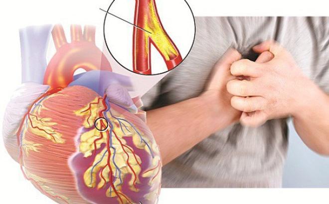 Tác dụng của tam thất đối với tim mạch